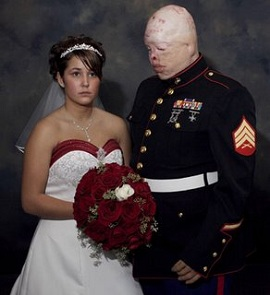 U.S. Marine disfigured by burn injuries