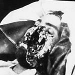 Facial war wound